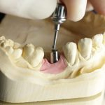 Meinhardt Implantologie